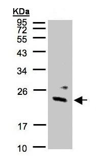 Western blot - Anti-Guanylate kinase antibody (ab154124)