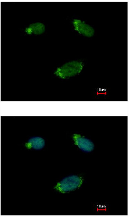 Immunocytochemistry/ Immunofluorescence - Anti-G protein alpha 16 antibody (ab154157)