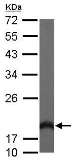 Western blot - Anti-VILIP3 antibody (ab154160)