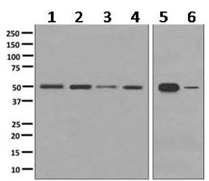 Western blot - Anti-PDIA6 antibody [EPR10133(B)] (ab154171)