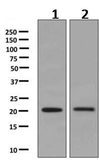 Western blot - Anti-RGS10 antibody [EPR10657(B)] (ab154172)