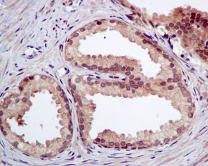 Immunohistochemistry (Formalin/PFA-fixed paraffin-embedded sections) - Anti-ATOX1 antibody [EPR10352] (ab154179)