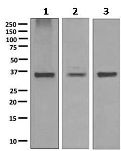Western blot - Anti-SCAMP2 antibody [EPR10185] (ab154181)