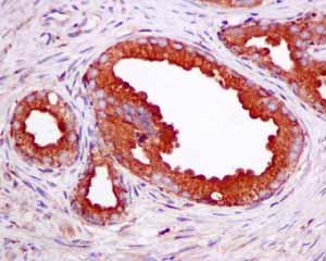 Immunohistochemistry (Formalin/PFA-fixed paraffin-embedded sections)-Anti-SCAMP2 antibody [EPR10185](ab154181)