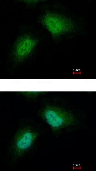 Immunocytochemistry/ Immunofluorescence - Anti-PCBP2/hnRNP E2 antibody (ab154245)
