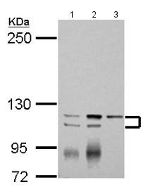 Western blot - Anti-SERCA3 ATPase antibody - N-terminal (ab154259)