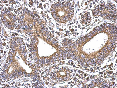 Immunohistochemistry (Formalin/PFA-fixed paraffin-embedded sections) - Anti-SERCA3 ATPase antibody - N-terminal (ab154259)