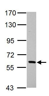 Western blot - Anti-PAK1 antibody (ab154284)