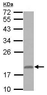 Western blot - Anti-LOC51255 antibody (ab154354)