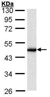 Western blot - Anti-Cytokeratin 16 antibody (ab154361)