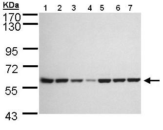 Western blot - Anti-MEKK3 antibody (ab154362)