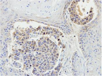 Immunohistochemistry (Formalin/PFA-fixed paraffin-embedded sections) - Anti-MEKK3 antibody (ab154362)