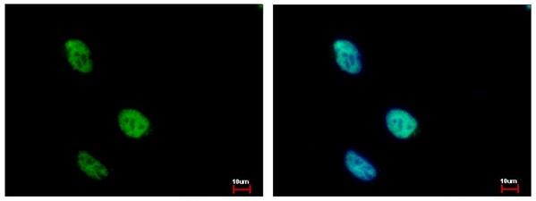 Immunocytochemistry/ Immunofluorescence - Anti-KLHDC4 antibody (ab154370)