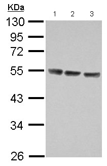 Western blot - Anti-IL13 receptor alpha 1 antibody (ab154380)