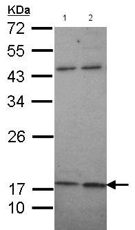 Western blot - Anti-Maxi Potassium channel beta antibody (ab154421)