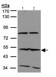 Western blot - Anti-IFIT2 antibody - N-terminal (ab154487)