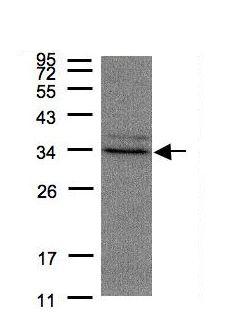 Western blot - Anti-MPST antibody - C-terminal (ab154514)