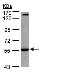 - Anti-IL1 Receptor I antibody - C-terminal (ab154524)