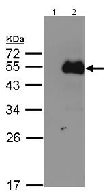 Western blot - Anti-NFIB / NF1B2 antibody (ab154540)