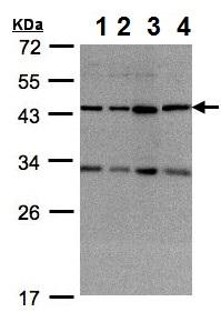 Western blot - Anti-DNAJC17 antibody (ab154580)