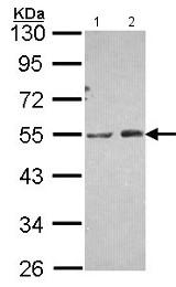 Western blot - Anti-PIP5K2 alpha antibody - N-terminal (ab154585)