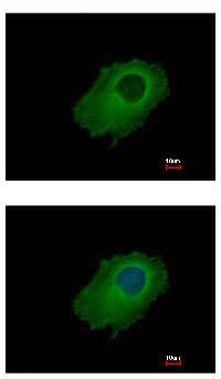 Immunocytochemistry/ Immunofluorescence - Anti-SERPINE2 antibody (ab154591)