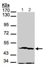 Western blot - Anti-PGK2 antibody (ab154608)