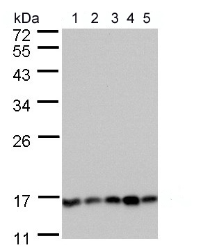 Western blot - Anti-Calcineurin B antibody (ab154650)