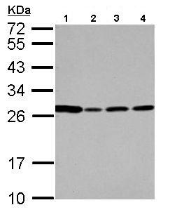 Western blot - Anti-PRG2 antibody (ab154655)