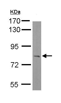 Western blot - Anti-RC74 antibody (ab154660)