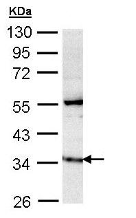 Western blot - Anti-GIMAP5 antibody (ab154669)