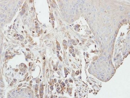 Immunohistochemistry (Formalin/PFA-fixed paraffin-embedded sections) - Anti-PKC gamma antibody (ab154690)