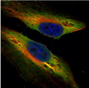 Immunocytochemistry/ Immunofluorescence - Anti-PTK9 antibody (ab154725)
