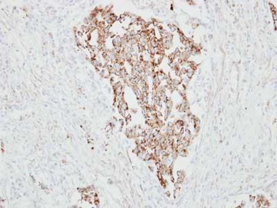 Immunohistochemistry (Formalin/PFA-fixed paraffin-embedded sections) - Anti-RARRES1 antibody (ab154742)