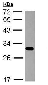 Western blot - Anti-Proteasome 20S beta 7 antibody (ab154745)