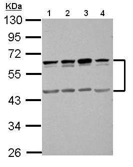 Western blot - Anti-SIGIRR antibody (ab154747)