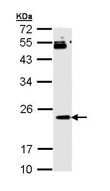 Western blot - Anti-RAP1B antibody (ab154764)