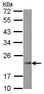 Western blot - Anti-IL21 antibody (ab154767)