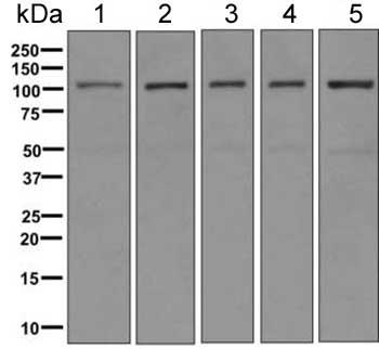 Western blot - Anti-AASS antibody [ EPR9145(B)] (ab154800)