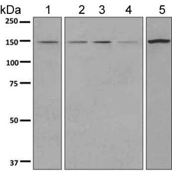 Western blot - Anti-DHX38 antibody [EPR9845] (ab154801)