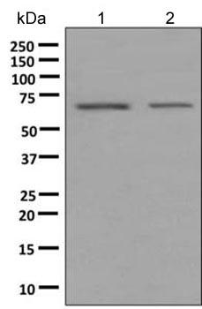 Western blot - Anti-EHD2 antibody [EPR9820] (ab154807)