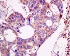 Immunohistochemistry (Formalin/PFA-fixed paraffin-embedded sections)-Anti-LAP3 antibody [EPR10330](ab154809)
