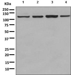 Western blot - Anti-Palladin antibody [EPR9460(B)] (ab154827)