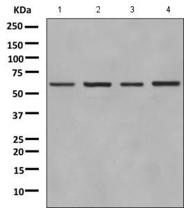 Western blot - Anti-GLYR1 antibody [EPR10076(B)] (ab154838)