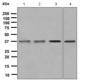 - Anti-G Protein alpha x+z antibody [EPR8654] (ab154846)
