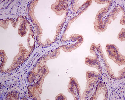 Immunohistochemistry (Formalin/PFA-fixed paraffin-embedded sections) - Anti-Protein Kinase A regulatory subunit I alpha (phospho S83) antibody [EPMAYR1] (ab154851)