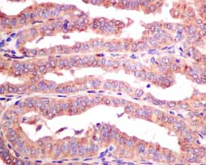 Immunohistochemistry (Formalin/PFA-fixed paraffin-embedded sections)-Anti-Protein Kinase A regulatory subunit I alpha (phospho S83) antibody [EPMAYR1](ab154851)
