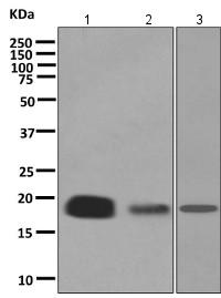 Western blot - Anti-TCEB2 antibody [EPR10441(B)] (ab154854)
