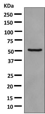 Western blot - Anti-PDE7A antibody [EPR7731] (ab154857)