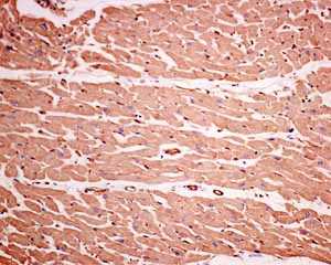 Immunohistochemistry (Formalin/PFA-fixed paraffin-embedded sections)-Anti-GNB3 antibody [EPR8862](ab154866)